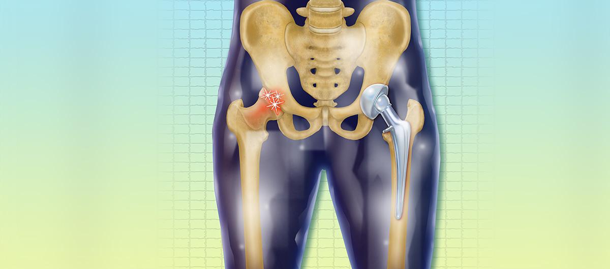 hips-surgery