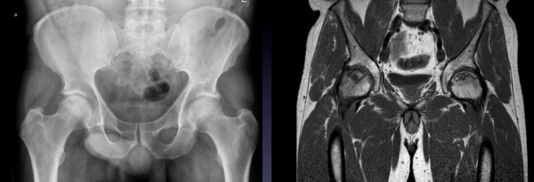 Total Hip Replacement   Leeds Joint Replacements